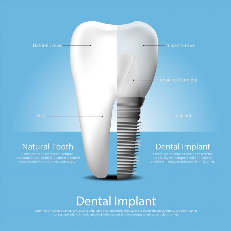 implant information tooth replacement