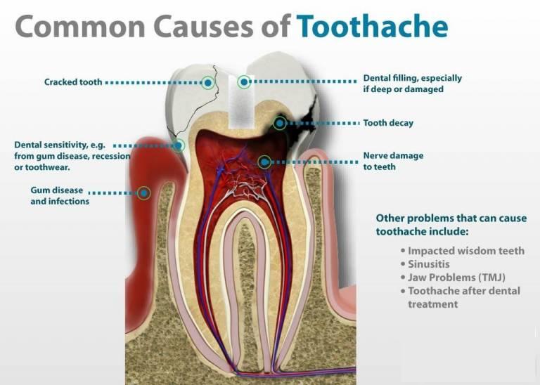 toothache deep cavity